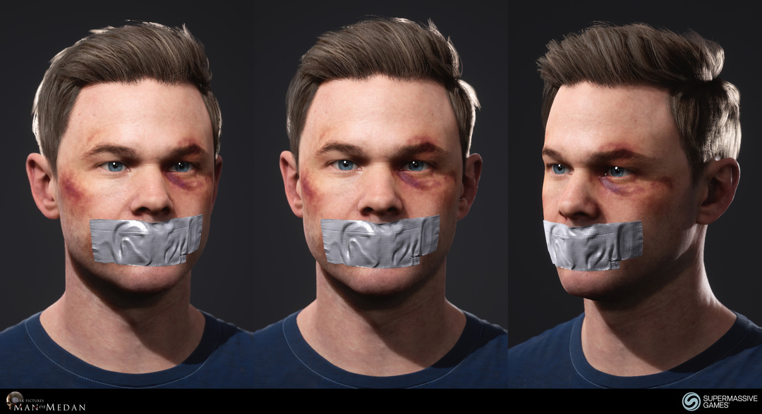 Conrad with mouth tape and bruises.